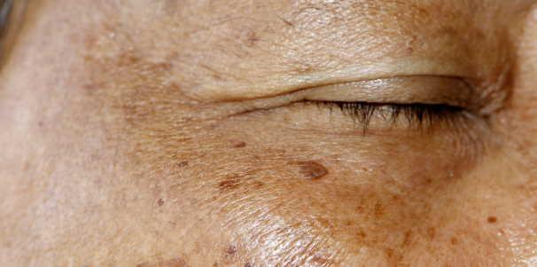 brown spots